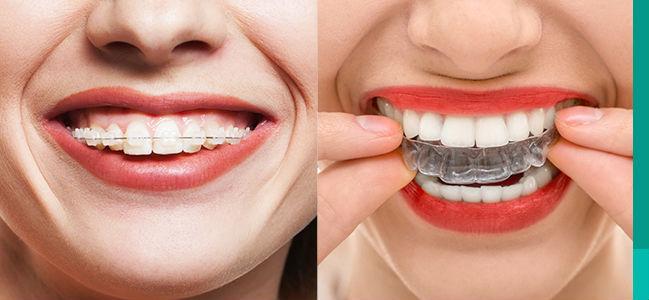 Aparelho Dentário Transparente | Preço, Fotos