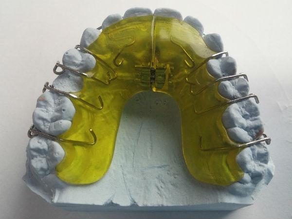 Prótese Dentária - Preços Fixas Flexível Silicone Porcelana 1