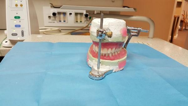 Prótese Dentária - Preços Fixas Flexível Silicone Porcelana