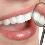 Tratamento Dentário Grátis – Dentista Gratuito Pelo SUS