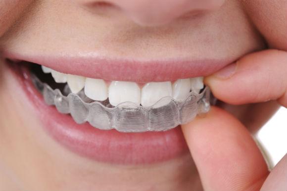 Tipos de Aparelhos Ortodônticos, Modelos de Aparelhos Dentários
