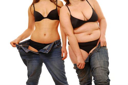 Cirurgia Redução de Estomago Preço, Valor da Cirurgia, Quanto Custa