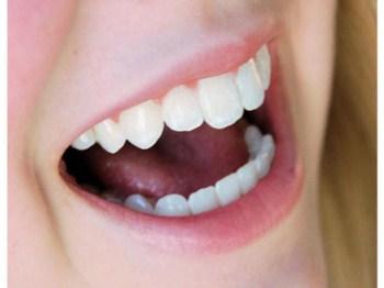 Clínicas de Clareamento Dental RJ