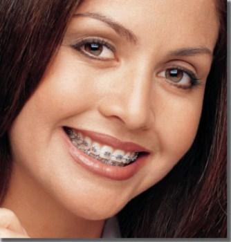 Colocar Aparelho nos Dentes, Ortodontia Preços