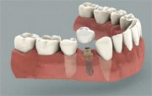 Implantes Dentários Custos da Cirurgia