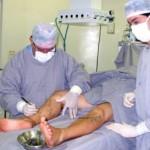 Cirurgia De Varizes Gratuita
