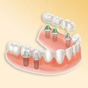 Próteses Dentarias Móveis Preços
