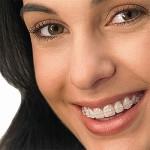 Aparelho Dental Móvel Preços