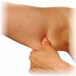 Cirurgia Plástica nos Braços Dermolipectomia, Reduzir Flacidez Braços