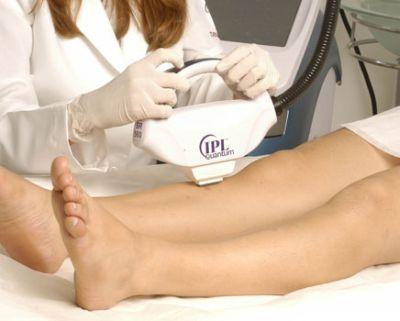 Tratamentos Estéticos Com Laser