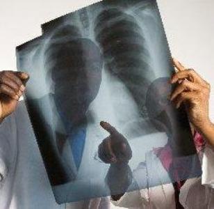 Cursos De Graduação Em Radiologia SP