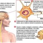 Esclerose Múltipla Saiba mais sobre essa Doença