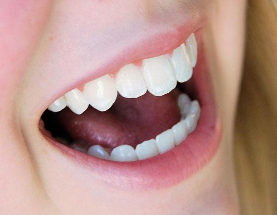 Clareamento dentário mais barato em SP