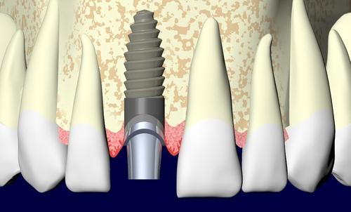 Implantes Dentários em Campinas