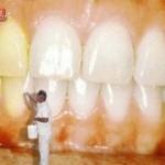 Cuidados para Evitar Dentes Amarelos