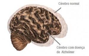 Entenda a Doença de Alzheimer