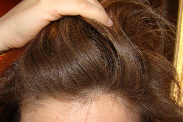 Os benefícios do shampoo a seco