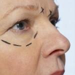 Conheça as principais complicações da cirurgia plástica