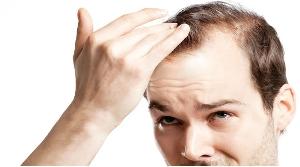 Queda de cabelo pode indicar problemas de saúde