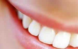 Tipos diferentes de clareamento dental