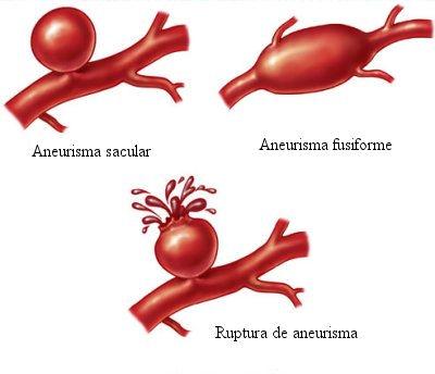 Aneurisma – O que é, tratamento