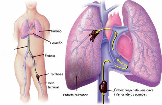 Embolia pulmonar: sintomas, tratamento