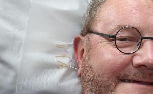 Tratamento gratuito de acupuntura pelo SUS 2017