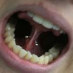 Piercing no freio da língua. (Foto:Divulgação)
