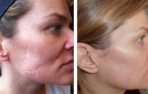 Maquiagens que ajudam disfarçar queimaduras