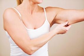Como prevenir e amenizar pele flácida