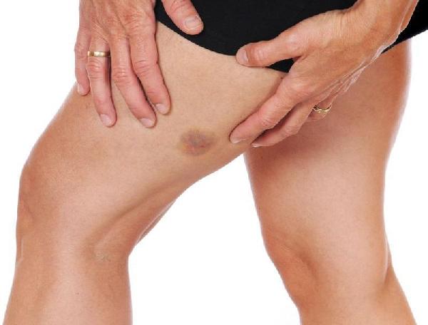 Tratamentos para Manchas nas Pernas