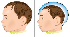 Entenda o que é Microcefalia