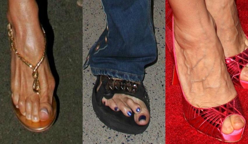 10 pés horríveis de famosas