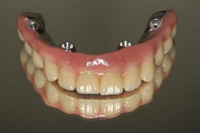 implante dentário gratuito