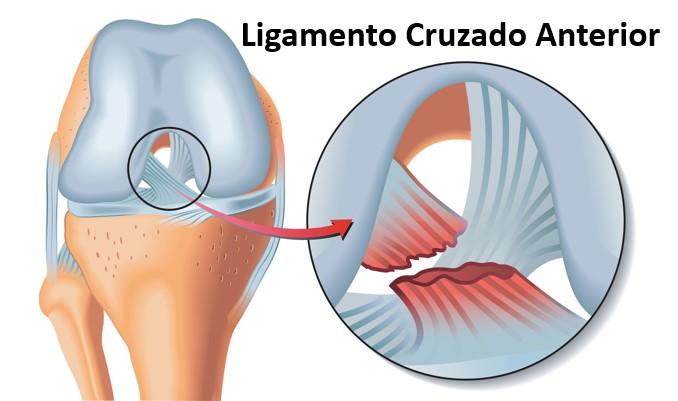 Ligamento Cruzado Anterior: conheça a lesão que mais assombra os clubes de futebol