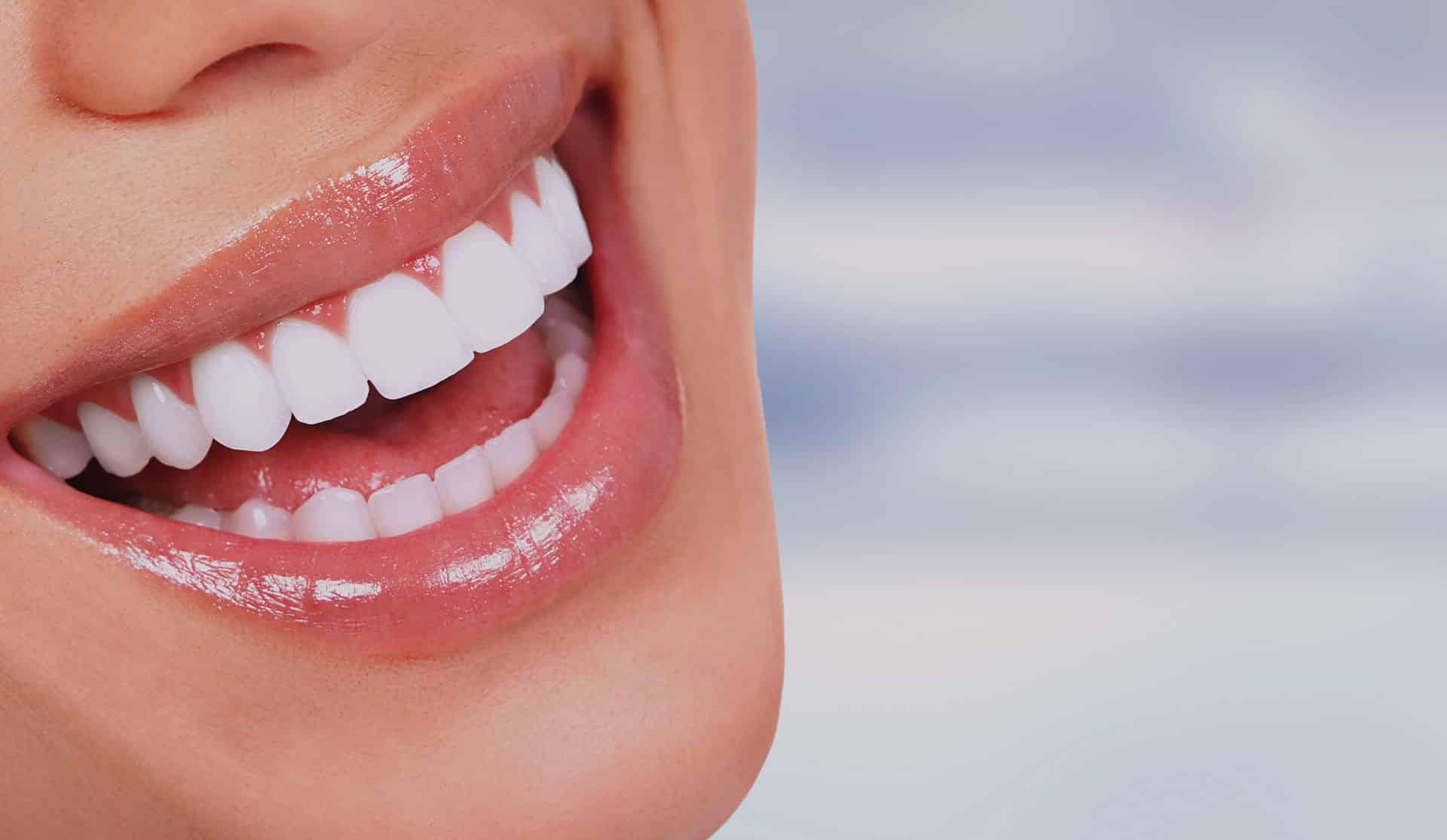 Lente de Contato Dental: Como Funciona, Preços, Vale a Pena?