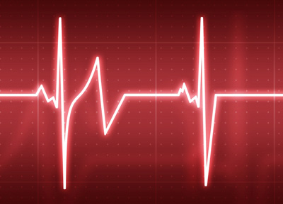 23602 heart beat Arritmia Cardíaca: O Que É?