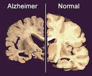 237820 Como Evitar o Mal de Alzheimer Como Evitar o Mal de Alzheimer