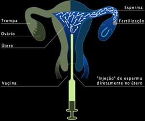240764 inseminacao artificial Fertilização Artificial, Como Fazer