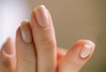 265015 Unhas Manchadas Indicam Doenças Unhas Manchadas Indicam Doenças