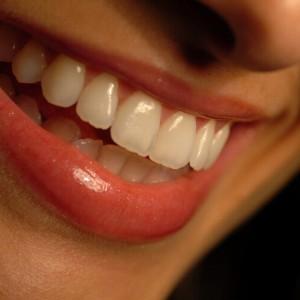 272418 falta de higieni bucal 1 300x300 Conheça as doenças causadas por falta de higiene bucal