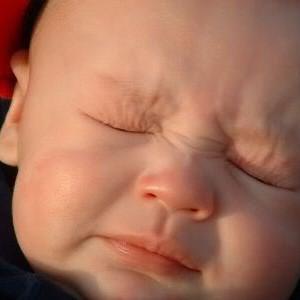 273613 alergias em bebe 300x300 Alergias em bebês como tratar