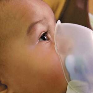 273613 alergias em bebes 1 300x300 Alergias em bebês como tratar