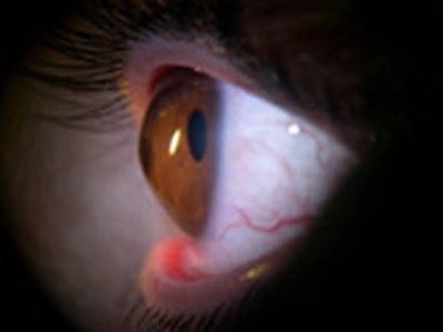 273780 Manchas nos Olhos 3 Saiba o significado das manchas nos olhos