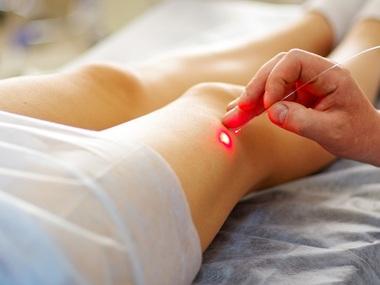 282462 tratamento de varizes na perna com laser 00000000000007A0 Dê adeus às varizes