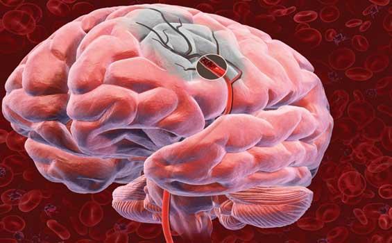 30427 Trombose Cerebral O Que É Trombose Cerebral: O Que É?