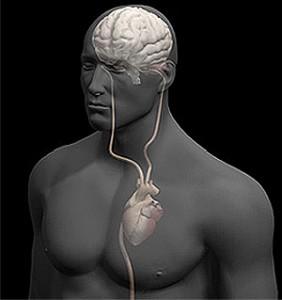 30427 trombose cerebral1 282x300 Trombose Cerebral: O Que É?
