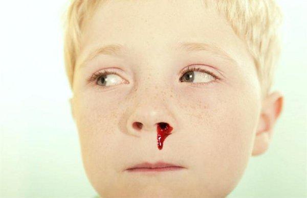 312224 dicas para tratar sangramento no nariz 1 Hemorragias: conheça os tipos e como cuidar