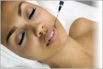 319529 Verdades e Mitos sobre o preenchimento labial Verdades e mitos sobre o preenchimento labial