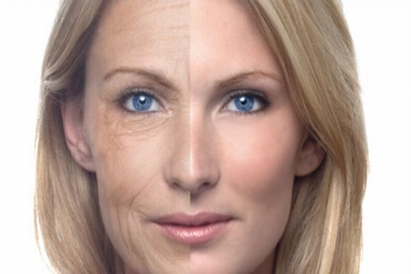 330885 Conheça as principais cirurgias plasticas de face Conheça as principais cirurgias plásticas de face